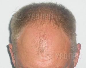 Филипп киркоров пересадка волос
