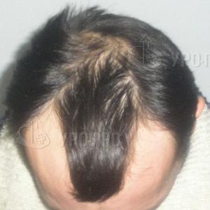 Как восстановить волосы во время беременности
