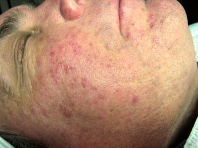 Лечение псориаза в Оренбурге отзывы