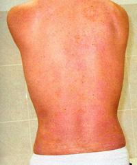 Чистка печени при псориазе еще один шаг на пути к избавлению от недуга