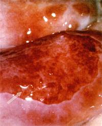 При лечении рефлексотерапия микротоковая варикоза