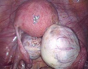 Причины и симптомы кисты левого и правого яичника у женщин