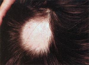 Маска для волос с витаминами группы в для роста волос