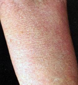 Мази от псориаза волосяной части головы