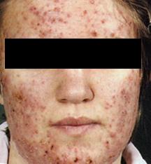 черные точки на лице крем