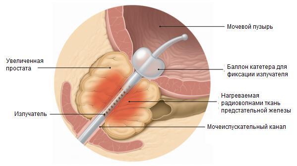 Диагноз рак предстательной железы форум
