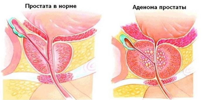 Удаление нерва из зуба: как это происходит (а также фото и